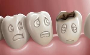 carie dentara