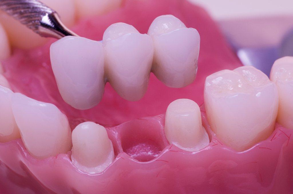 punte dentara