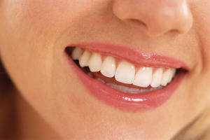 albirea dintilor