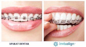 Comparatie-Invisalign-tratament-ortodontic-obisnuit