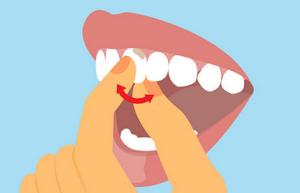 dinte care se misca