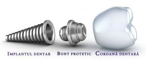 componente implant dentar
