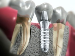 implant dentarr