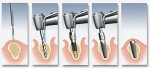 amplasare-implant