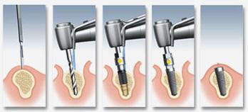 amplasare implant