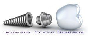 componente-implant-dentar