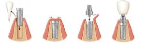etape-inserare-implanturi-dentare