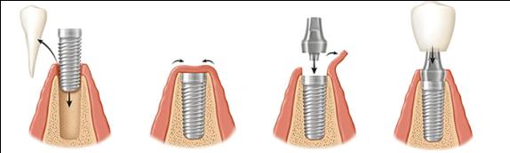 etape inserare implanturi dentare