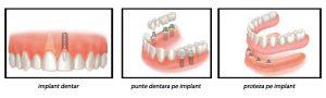 implant-punte-si-proteza