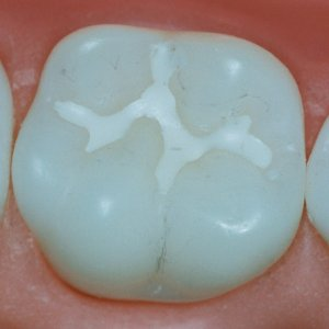 sigilare-dentara