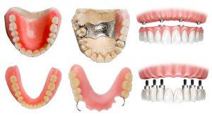 tipuri proteze dentare