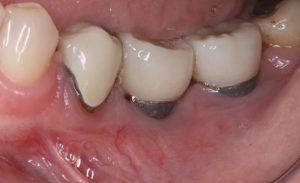 riscuri implant dentar