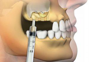 Cum se realizează operația de sinus lift
