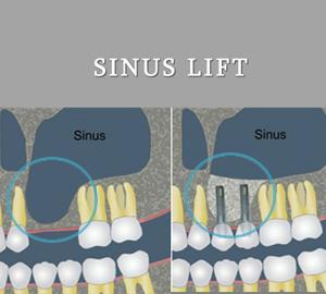 operatie sinus lift