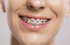 tipuri de aparate dentare fixe