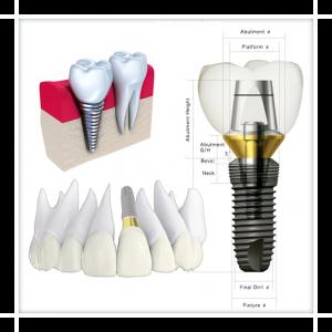oferta implant dentar